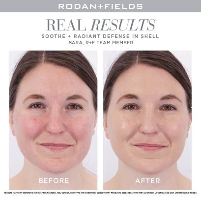 Soothe+ Radiant Defense-Shell