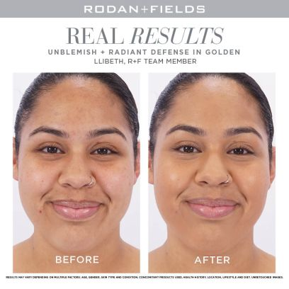 Unblemish + Radiant Defense-Golden